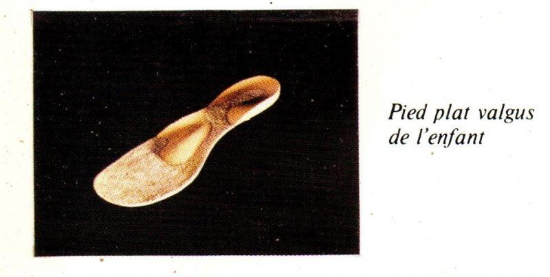 semelles orthopédiques de l'enfant - Podologie Le Havre - PHILIPPE ...