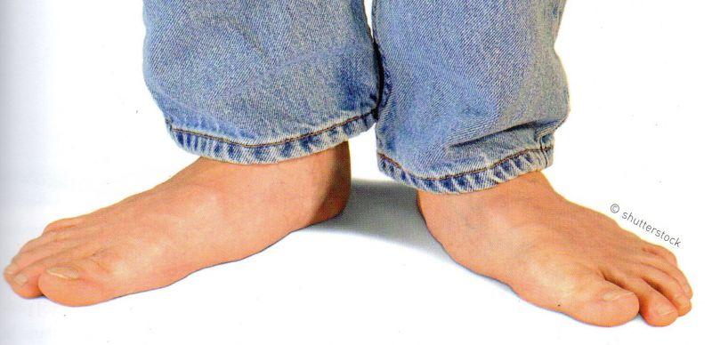 7 choses à faire si vous souffrez d'une douleur au talon